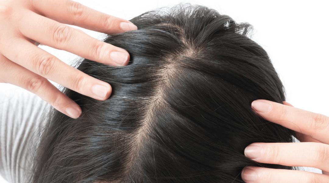 łysienie androgenowe metody sposoby