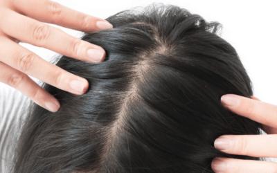 Skuteczna pomoc w leczeniu łysienia androgenowego